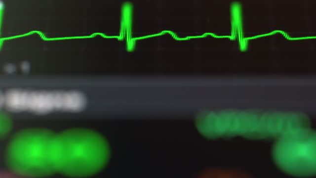 Vital Signs screen Monitor Measurements for blood pressure, pulse oximetry, pulse rate, and temperature defibrillator stock videos & royalty-free footage