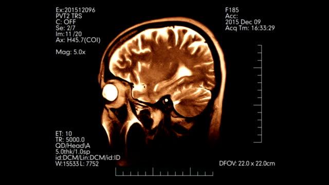 Warm color profile mri brain scan monitoring video