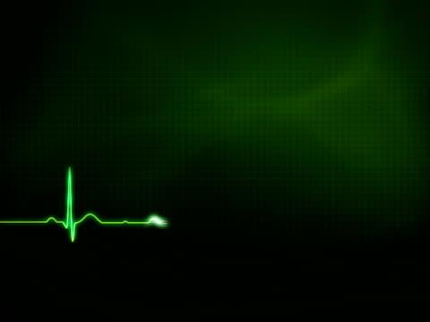 NTSC EKG waveform with copy space video