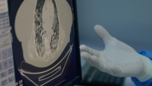stockvideo's en b-roll-footage met hoe ziet een menselijke long eruit met een covid-19 - breast cancer