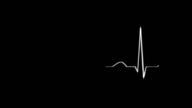 White HeartBeat Cardiogram on Grid Background. Abstract White HeartBeat Cardiogram on Grid Background. Animated Seamless Looping Motion Design. pulse trace stock videos & royalty-free footage