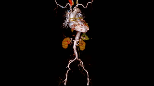 vídeos de stock e filmes b-roll de cta whole aorta 3d rendering image turn around on the screen for detect aortic aneurysm. - aorta