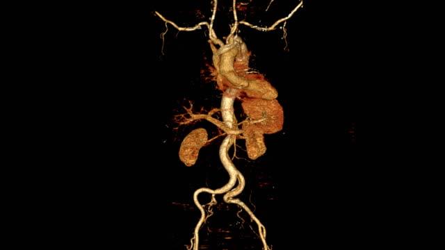 vídeos y material grabado en eventos de stock de cta toda la imagen de renderizado 3d de aorta se da la vuelta en la pantalla que muestra la disección aórtica. - arteriograma