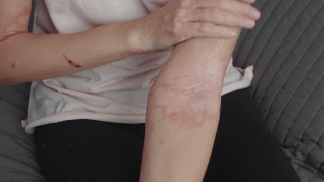 vídeos y material grabado en eventos de stock de mujer aplica una pomada dermatitis armoniosa - alergias alimentarias