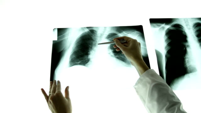 stockvideo's en b-roll-footage met woman doctor hands pointing on lungs xray light table - longen