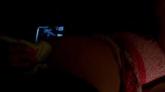 Woman Getting Ultrasound video