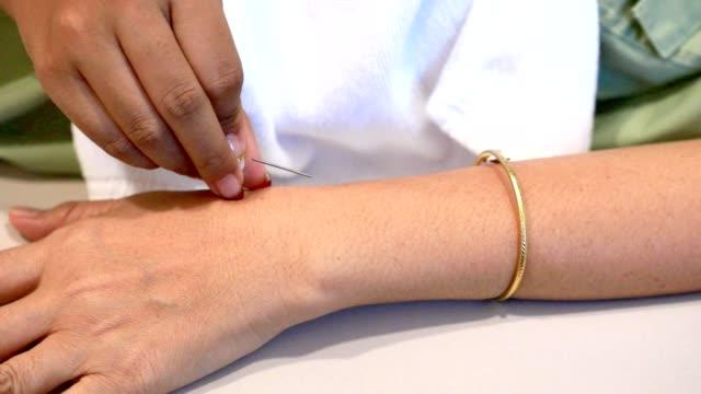 kvinna hand genomgår akupunktur behandling - acupuncture bildbanksvideor och videomaterial från bakom kulisserna