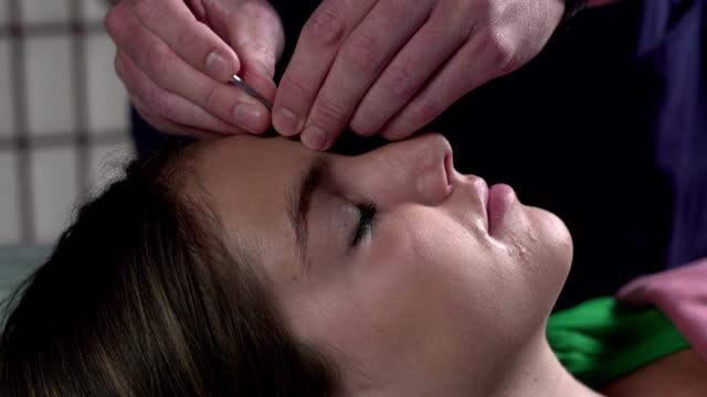 woman having acupuncture done on her face - acupuncture bildbanksvideor och videomaterial från bakom kulisserna