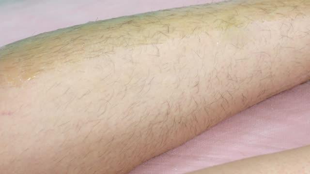 Woman having waxing - hair removal depilation on leg in salon