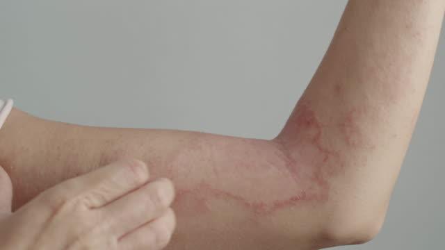 vídeos y material grabado en eventos de stock de mujer se rasca el brazo con dermatitis - afección médica