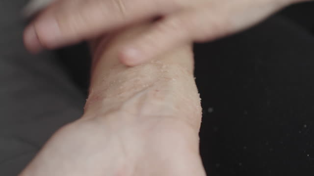 woman scratches her hand with dermatitis