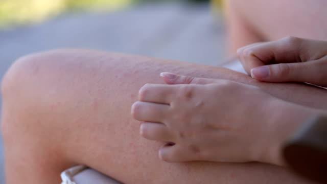 Woman scratching her irritated leg