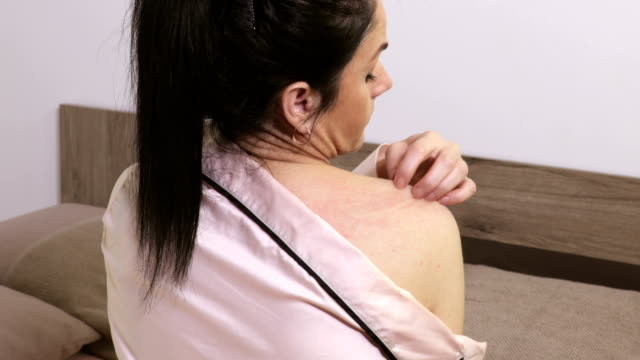 Woman scratching her shoulder.Health problem, skin diseases concept