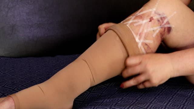 tıbbi sıkıştırma çorap giyen kadın - sütür eklem stok videoları ve detay görüntü çekimi