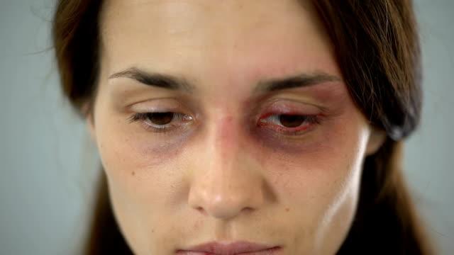 kvinna med blåmärke på ansikte tyvärr tittar på kameran, offer för övergrepp i familjen - skada bildbanksvideor och videomaterial från bakom kulisserna