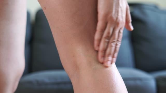 vidéos et rushes de la jambe de la femme avec des varices. traitement à la crème. - caillot sanguin