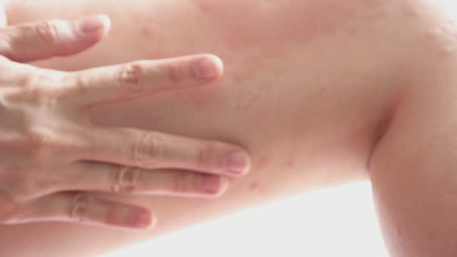 Women apply the rash urticaria or allergy on body