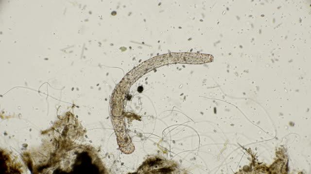 worm of the family Aeolosomatidae, Aeolosoma hemprichi, under the microscope