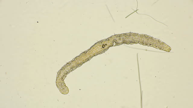 worm of the family Aeolosomatidae, Aeolosoma hemprichi, under the microscope video