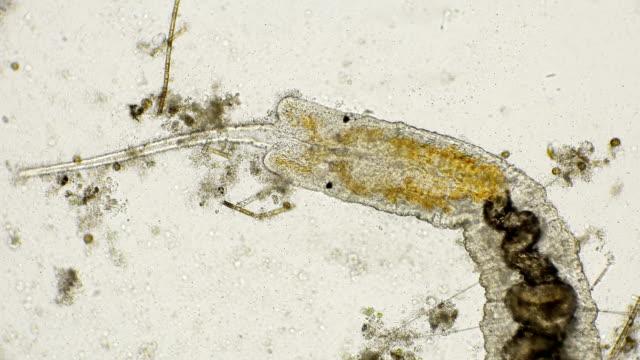 worm of the family Naididae, Pristina longiseta under the microscope