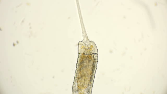 worm of the family Naididae, Pristina longiseta under the microscope video