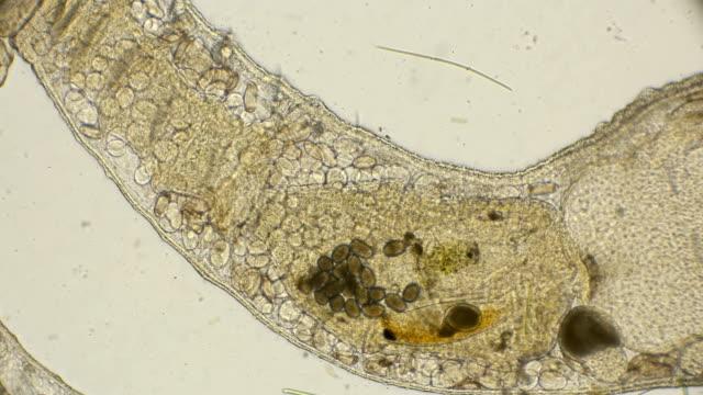 worm oligochaete , under a microscope