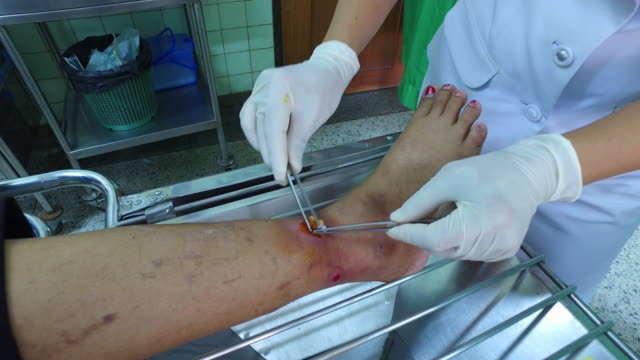 Wound diabetics. video
