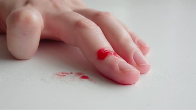 Wounded middle finger of woman is bleeding, stains of blood on white table video