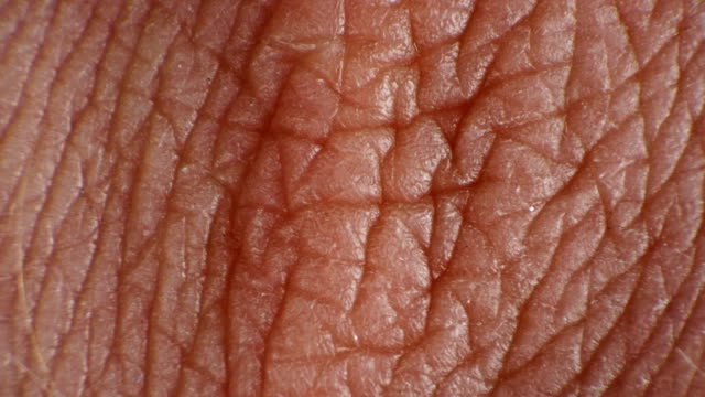 wrinkled and cracked human skin under a microscope - derma video stock e b–roll