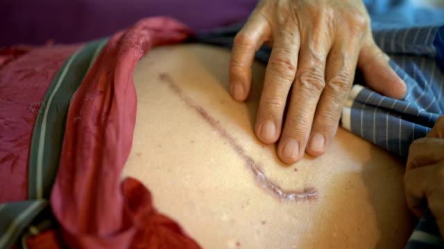 CU Wrinkled Senior Man Touching Lesion Scar of Surgery