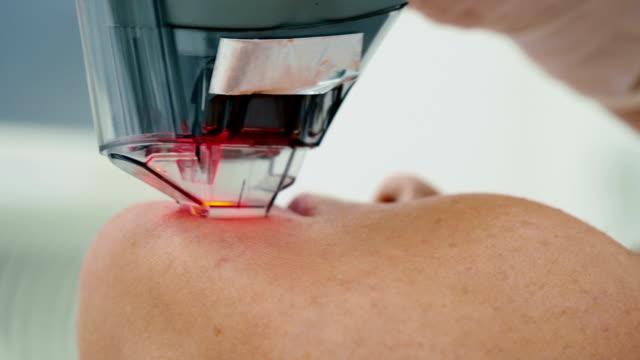 stockvideo's en b-roll-footage met de procedure van de verwijderen van rimpels in schoonheid kliniek - alternatieve therapie