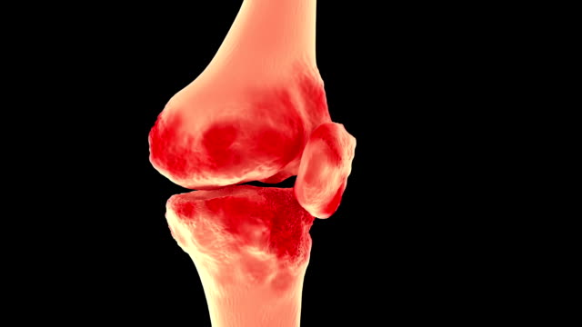 x ray of knee showing knee pain arthritis video