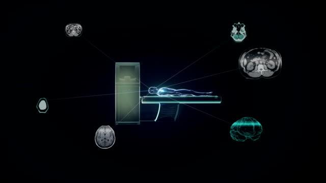 vídeos de stock e filmes b-roll de x-ray ct scanner, medical mri - tomografia