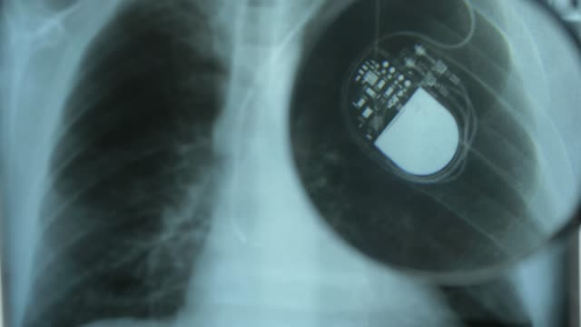 X-Ray Image of Chest with Artificial Cardiac Pacemaker Under Magnifying Glass X-Ray Image of Chest with Artificial Cardiac Pacemaker Under Magnifying Glass defibrillator stock videos & royalty-free footage