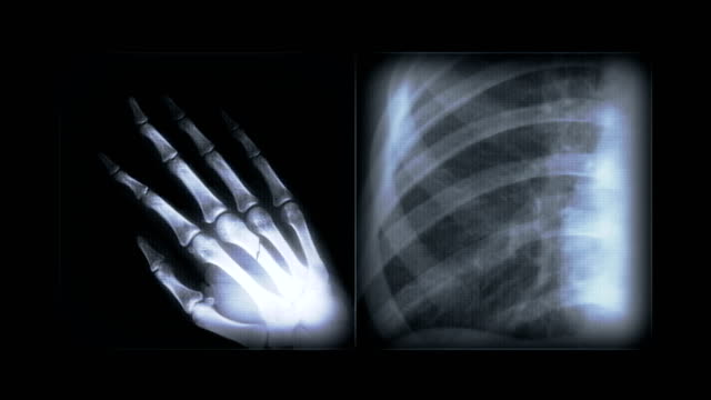 x-ray images abstract 4k video