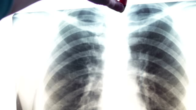 X-ray of human lungs.Diagnostics for prevention of lung cancer. Doctor looking at X-ray image of human chest, scanning lungs. Man checking patient's roentgen scan in laboratory. Diagnostics for prevention of lung cancer. Healthcare, medical treatment of diseases lung stock videos & royalty-free footage