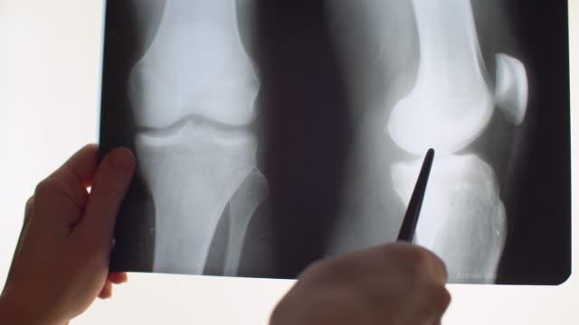 膝のx線 - 四肢点の映像素材/bロール