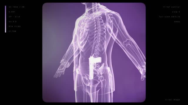 X-ray Mann mit Waffe – Video