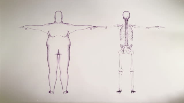 X-ray of Overweight Man and Skeleton video