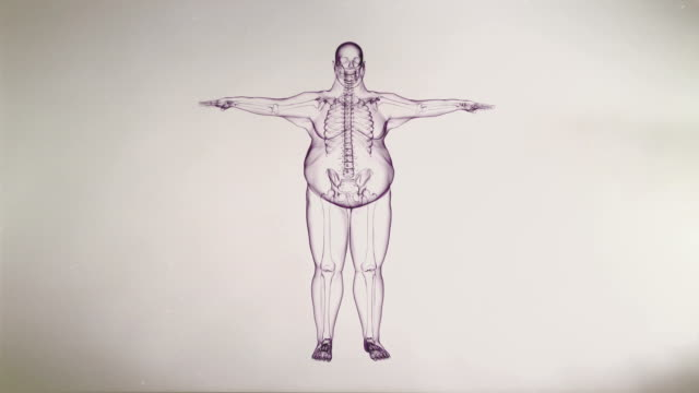 X-ray of Overweight Man with Skeleton | Loopable video