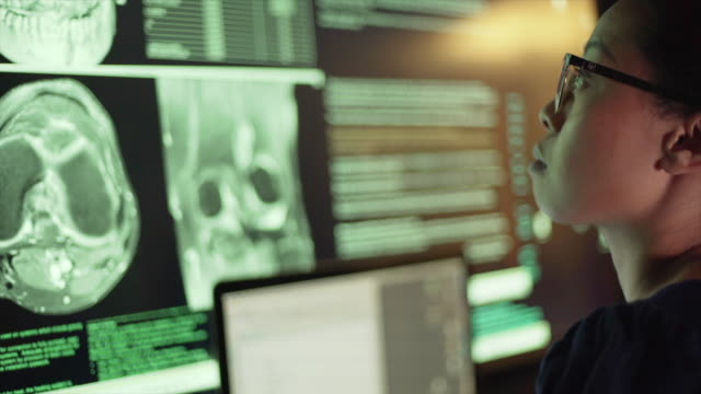 vídeos de stock e filmes b-roll de ct x-ray radiology - instrumento para diagnóstico