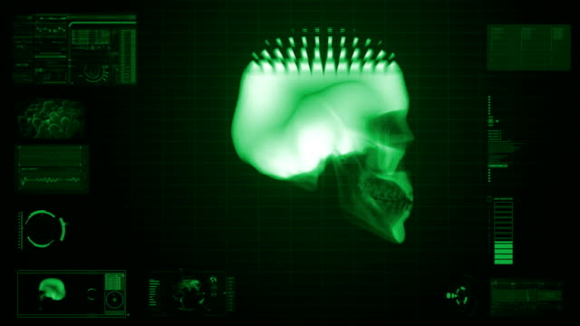 x-ray scan of skull in green video