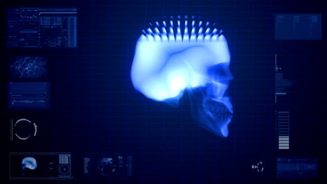 x-ray scan of skull video