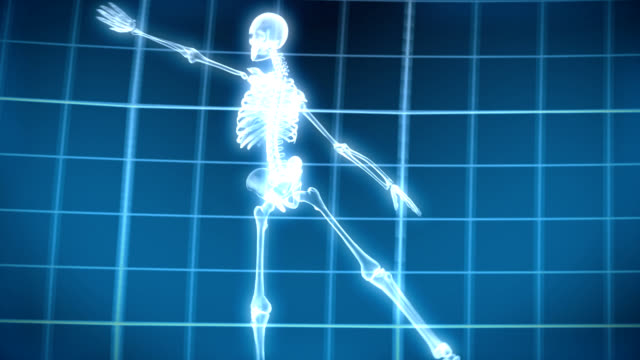X-Ray Skeleton Dancing video