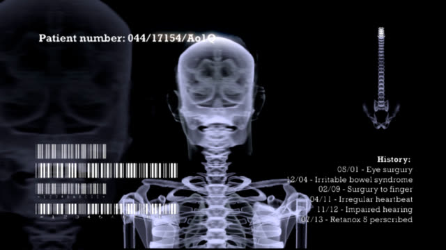 X-Ray Skeleton rotation video