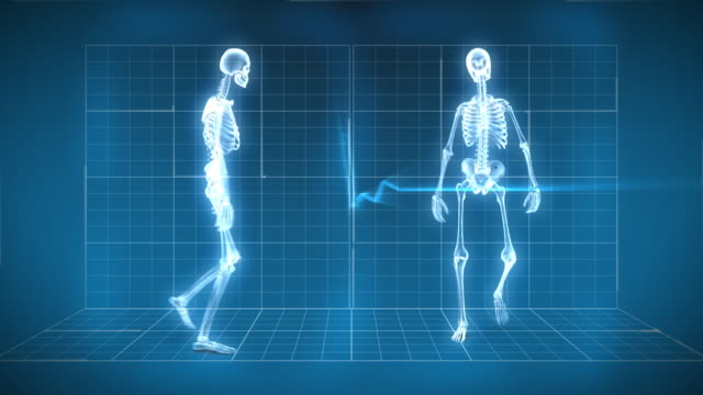 X-Ray Skeleton Walking video