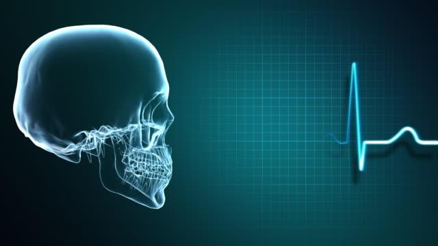 vídeos y material grabado en eventos de stock de x-ray cráneo y monitor de corazón - autopsia