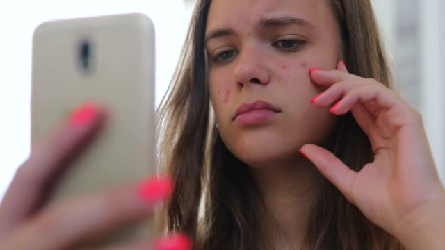 Young girl looking at her front camera on mobile phone, and she's sad about her acne problem