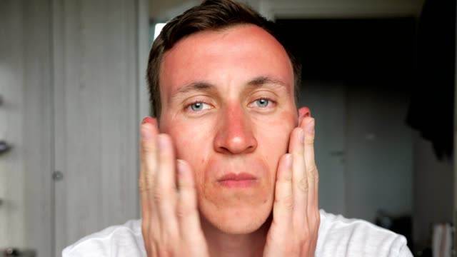 young guy touches red sunburned face sitting at home young guy touches red sunburned face sitting at home closeup short length stock videos & royalty-free footage