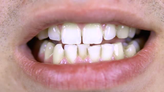 stockvideo's en b-roll-footage met de jonge mens toont kromme tanden. close-up - s